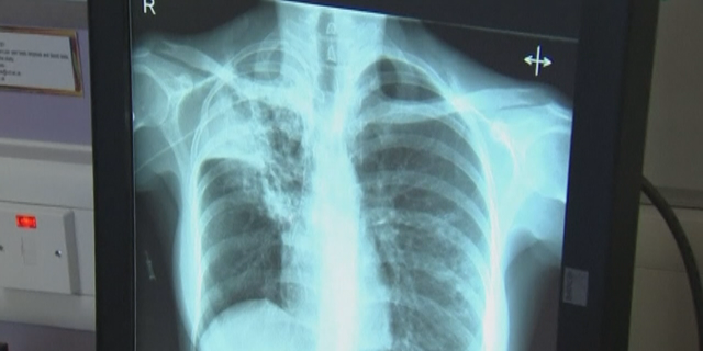 Ramsey County has counted 17 cases of tuberculosis so far, with six fatalities including three that have been directly linked to the disease.