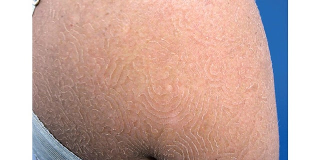 This image shows a young woman's rash, caused by the fungus Trichophyton concentricum.