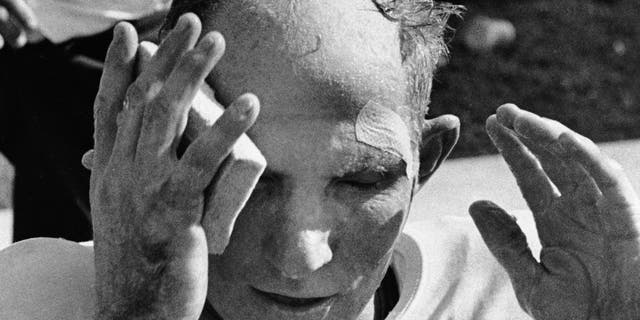 In this Oct. 7, 1962, file photo, New York Giants quarterback Y.A. Tittle wipes his face after running for a touchdown against the St. Louis Cardinals, in St. Louis.