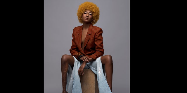 Berlange battled through her insecurity and went on to prove the bullies wrong by modeling for brands including Toys R Us, Samsung, Mac and Johnnie Walker.