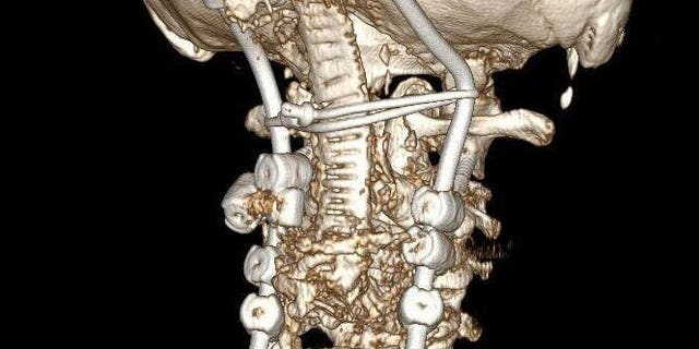 This X-RAY rendering shows what Gearing's neck will look like after the surgery.