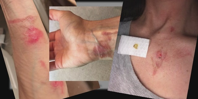 """Sheryl Utal claims she sustained the above injuries while using her """"NutriBullet"""" for 15-20 seconds."""