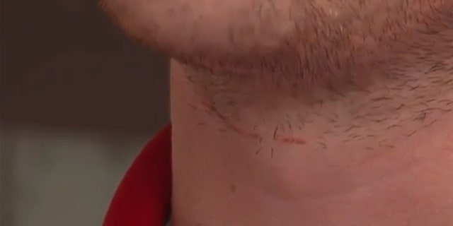 Alexander Teston said he received a cut on his neck and was nearly knocked off his motorcycle after driving into fishing line strung across a road.