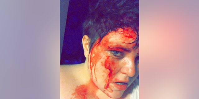 Amnell-Connor said she woke up at 4 am covered in blood and called for her dad.