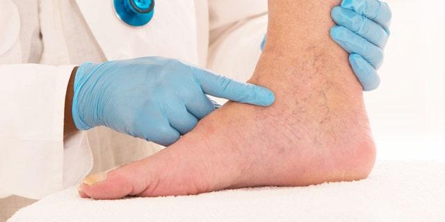 Lower limb vascular examination