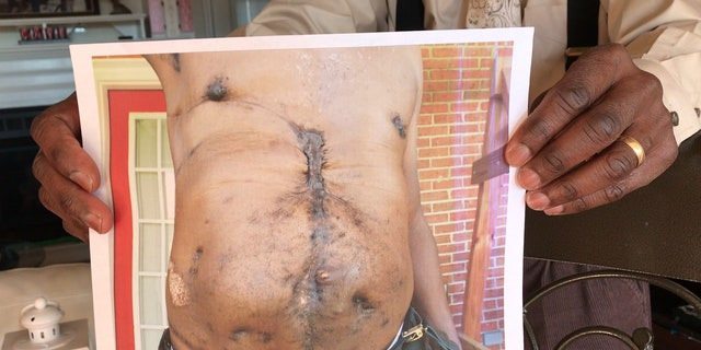 Johnson shows scars from his surgeries after the assasination attempt in 2010. Columbia, SC.