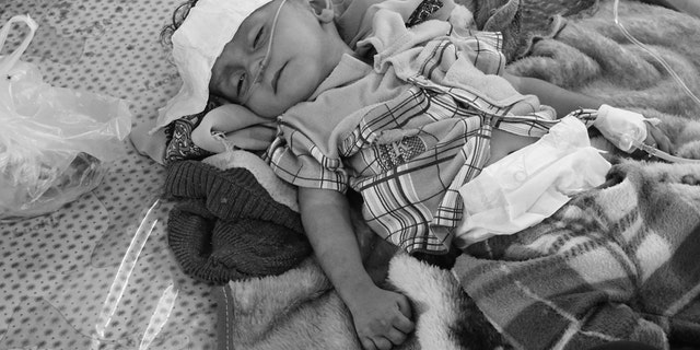 Hodeida, Yemen. (2 May 2017). Little boy lies on a bed at the Al Thawra Public Hospital in Hodeida. Due to lack of proper medical care in nearby provinces, people have no choice, but to come to this hospital in Hodeida, which deals with over 1000 newcomers everyday. @ICRC/Ralph El Hage