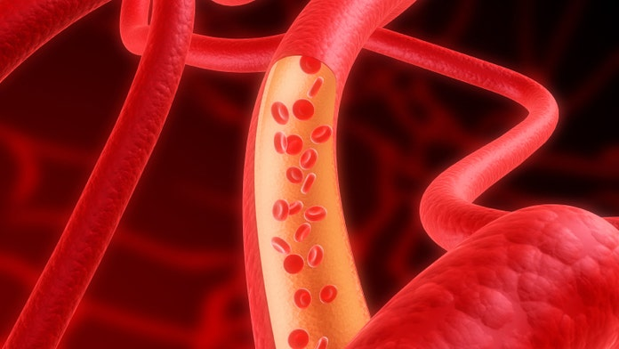 Half of deadly heart attack patients may have had additional clogged arteries