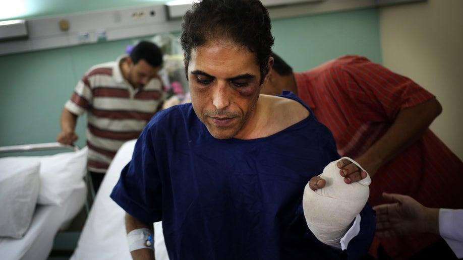 cb482e92-Mideast Egypt Politician Attacked