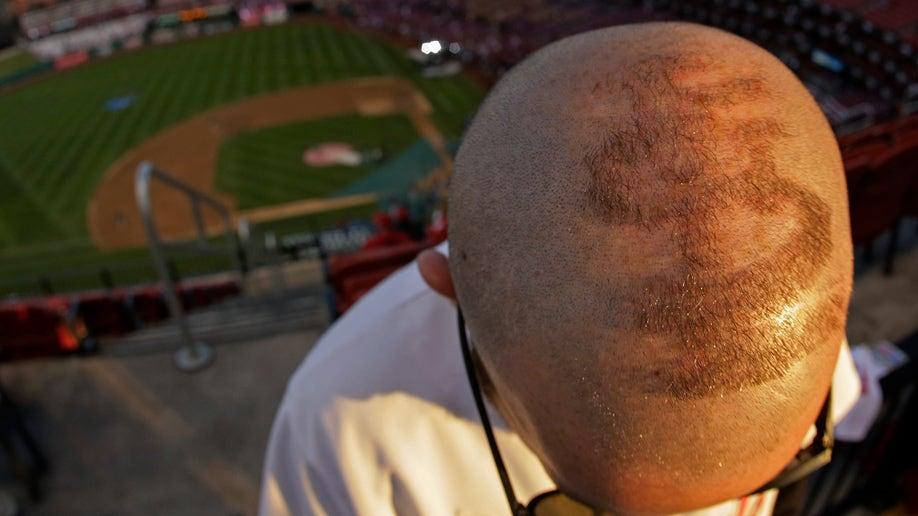 07705cdb-World Series Red Sox Cardinals Baseball