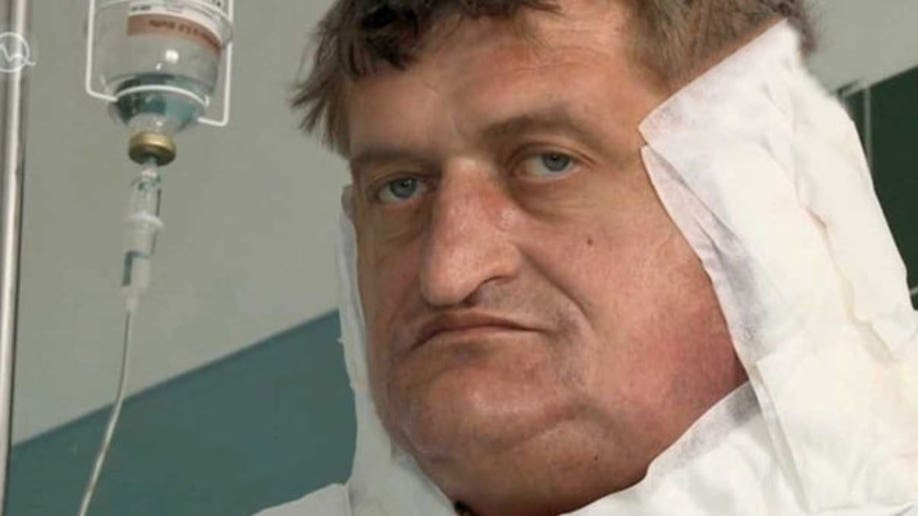 ee6b4a66-Slovak Man with One Stone Tumour Gets Final Op