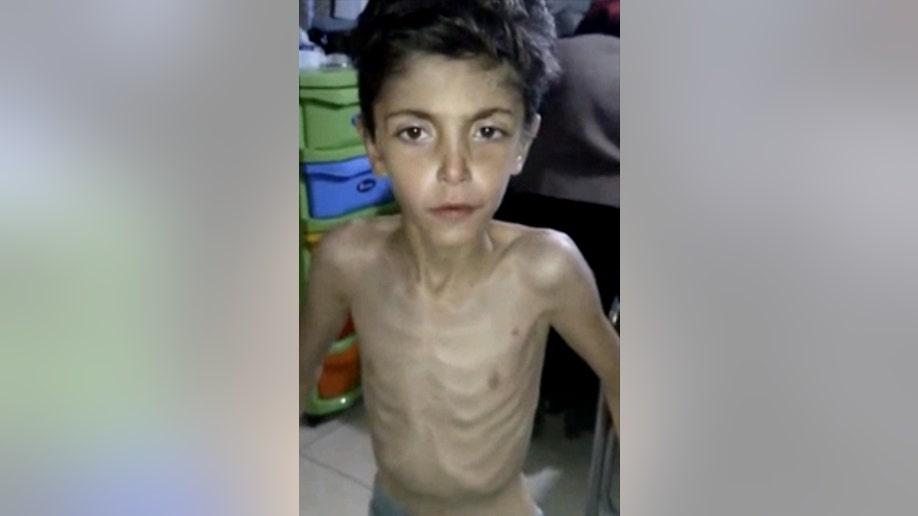 Syria Sieges