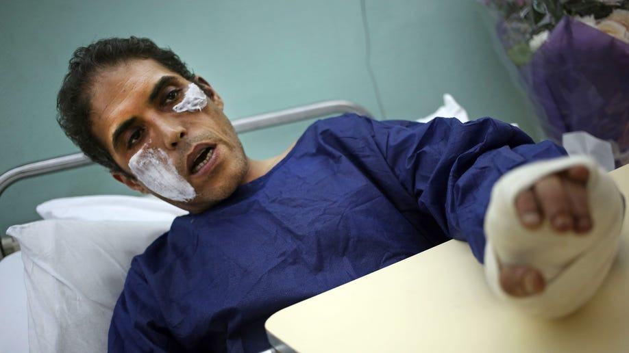 Mideast Egypt Politician Attacked