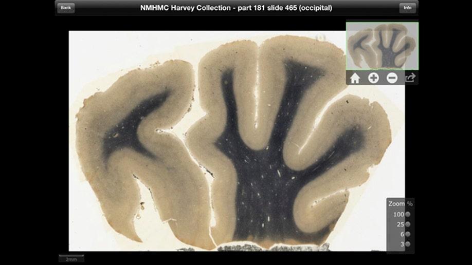 0dfa3b4f-SCI Einsteins Brain App