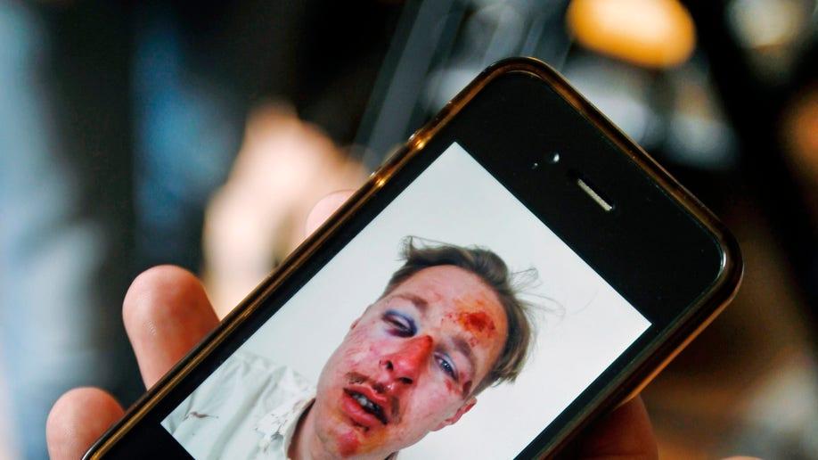 dfc6950f-France Gay Attacks
