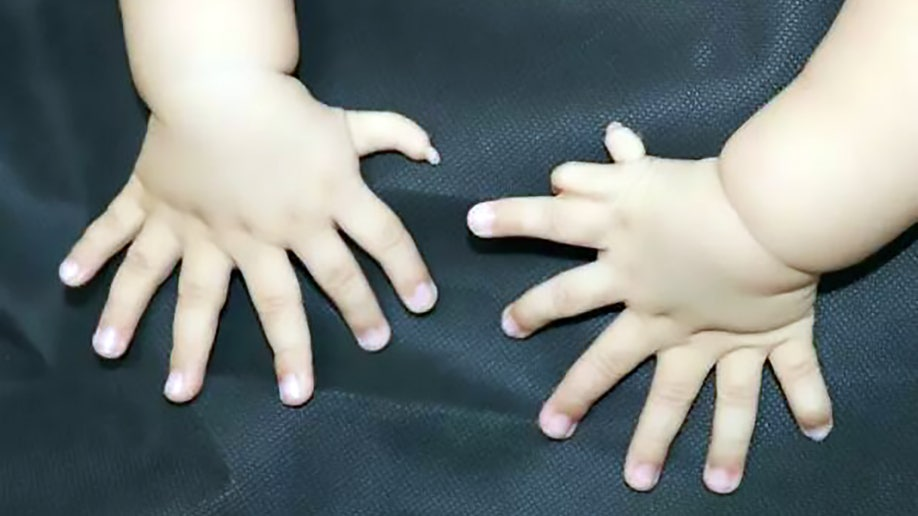 polydactyly_hands_awr