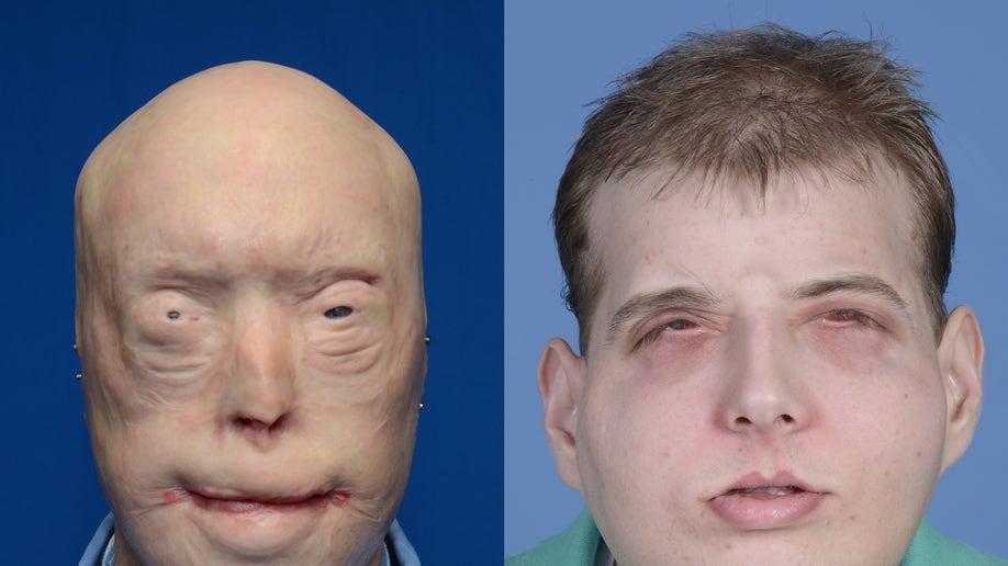 761e6d4a-hardison_facial_transplant_ap