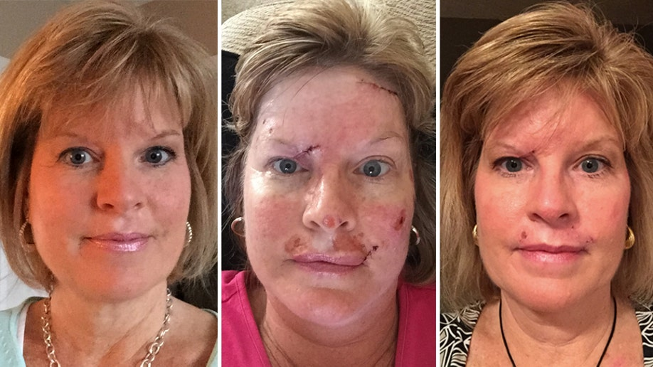 73f46493a4e Woman shares skin cancer photos to show effects of tanning habit ...