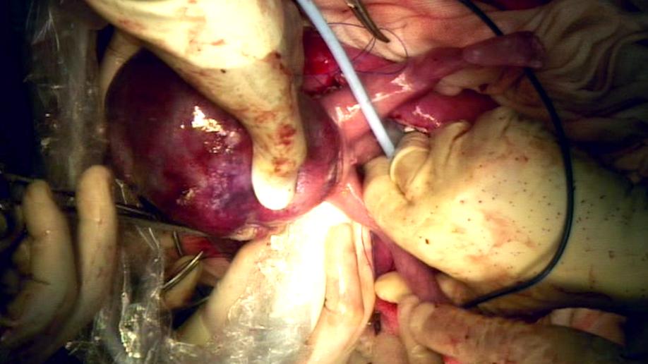 lynlee_surgery