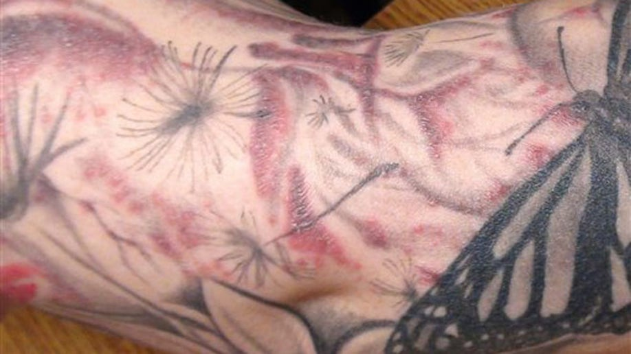e2264c74-Tattoo Infection