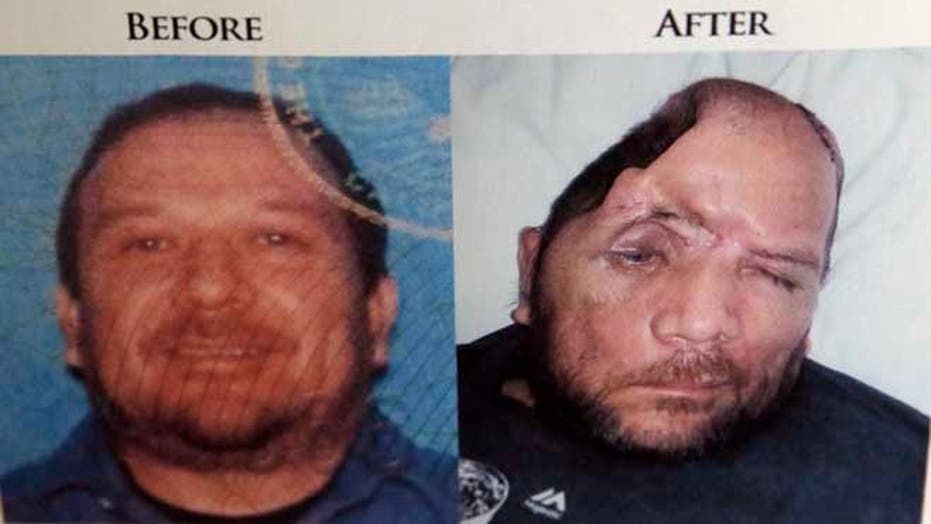 Miracle and tragedy: Man loses quarter of skull because of police shooting