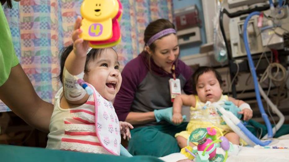 Formerly conjoined twins doing better – in time for Mother's Day