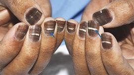 Chemo turns man's fingernails completely brown