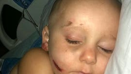 Texas boy, 2, partially scalped after being dragged under car