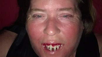 Alabama woman's zombie Halloween costume turns into medical nightmare after $3 fake teeth get stuck
