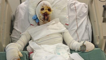 Woman's allergic reaction to penicillin leaves her with horrific burns