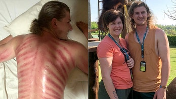 Tourist gets 'red dragon' massage in Bali, ends up with painful-looking red marks across back