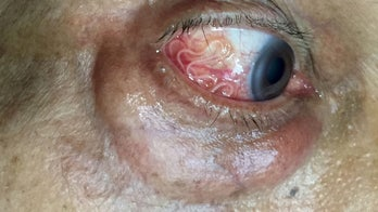 Stomach-churning video shows live parasitic worm being removed from a man's eye