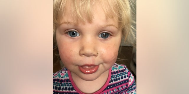 Alice Taylor, now 4, is adjusting to her new normal.
