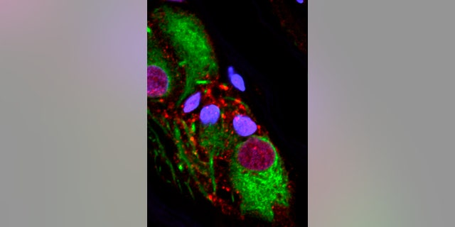 This microscope image provided by the Van Andel Research Institute in October 2018 shows an abnormal protein that is a hallmark of Parkinson's disease clumped inside the appendix.