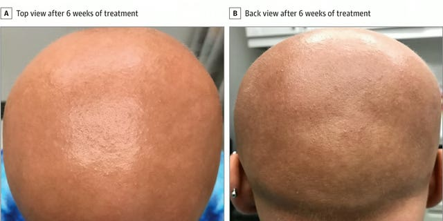 Fine light hairs called vellus hairs appear on the scalp of a patient with alopecia totalis six weeks after she began dupilumab treatment for eczema