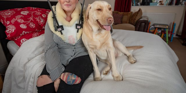 Bexx Hunt tripped over her family's pet dog and fell down the stairs fracturing a vertebrae in the process.