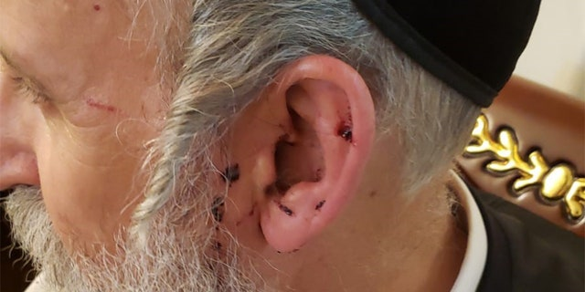 The Brooklyn District Attorney's Office said Schwartz suffered cuts to the lip, tongue and ear, bleeding from the mouth, swelling to the hand and scratches to the foot and head during the attack.