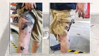 Man suffers third-degree burns after vape pen explodes in pocket