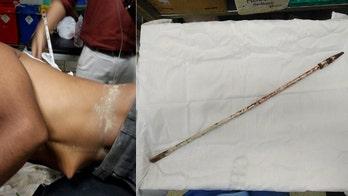 Doctors save biker impaled by metal rod