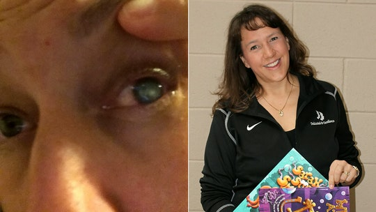 Mom temporarily blinded by parasite after swimming with contacts