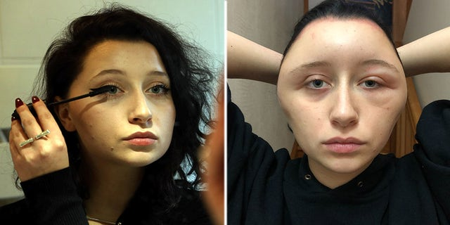 A French woman says her head became swollen after she suffered an allergic reaction to hair dye.