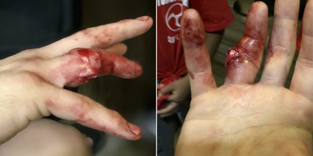 The gruesome photo shows Harvey Park's bone popping out of his finger.