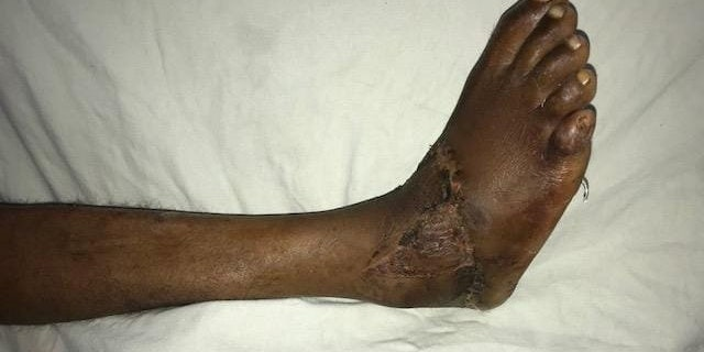 The victim, a 27-year-old carpenter, needed a second operation to repair nerves and graft skin.