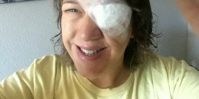Peoples, 49, was left without vision in her left eye after contracting acanthamoeba keratitis, a rare infection in which an amoeba attacks the outer layer of the eye.