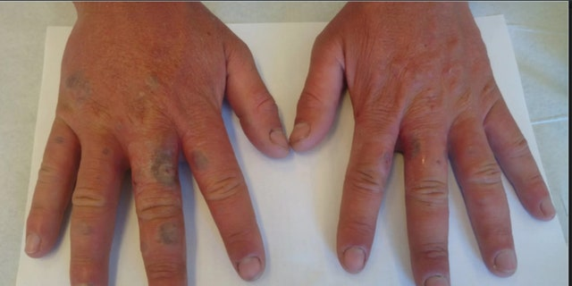 The doctors lanced and bandaged the man's blisters,gave him antibioticsto prevent bacterial infections and recommended that he wear gloves to protect his hands from the sunlight.