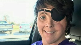 Kentucky woman permanently disfigured in firework accident recounts 'devastating' ordeal: 'I was just standing in the wrong place at the wrong time'