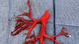 Patient coughs up blood clot in shape of lung passage: report