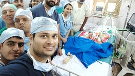 Surgeons separate 3-day-old conjoined twins in 5-hour operation