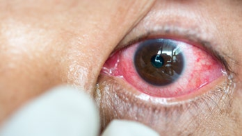 Sleeping in contacts could result in serious eye infections