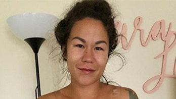 Bikini model claims 'breast implant illness' left her with bald spot, rash